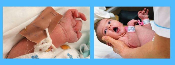 браслетки на руках новорождённого