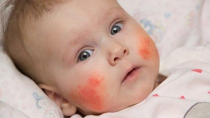 Сильная аллергическая реакция на щёчках у ребёнка