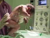 новорождённый в руках врача