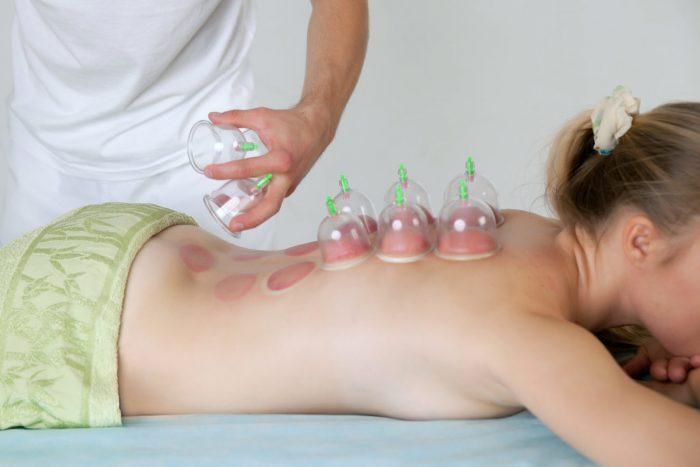 Установка банок на спину ребёнка