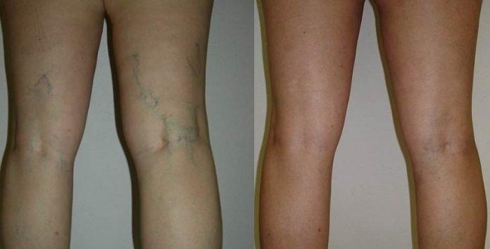 Здоровые ноги и поражённые варикозом