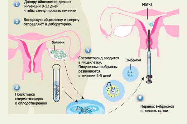 Схема ЭКО с донорской яйцеклеткой