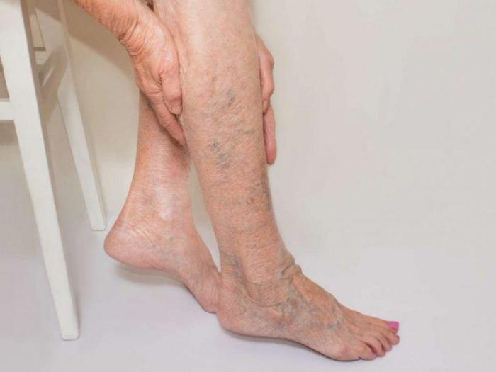 Варикоз на ногах пожилой женщины
