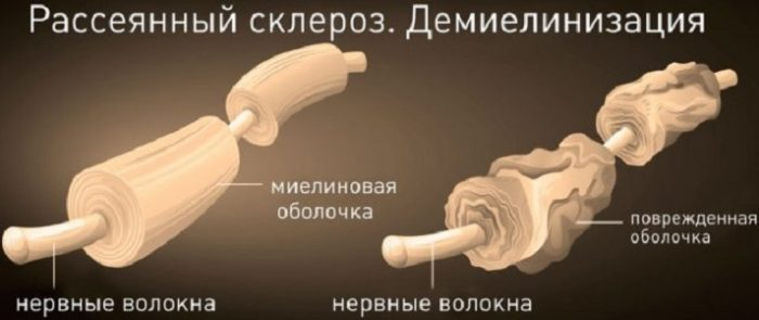 Нормальное нервное волокно и при рассеянном склерозе