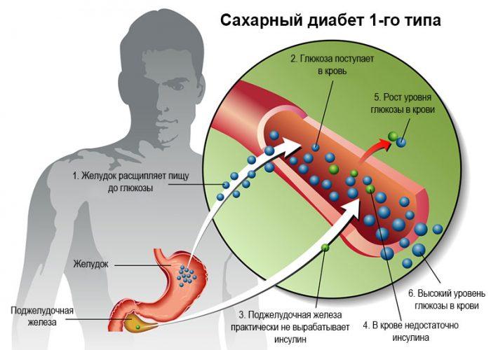 Схема протекания сахарного диабета 1-го типа