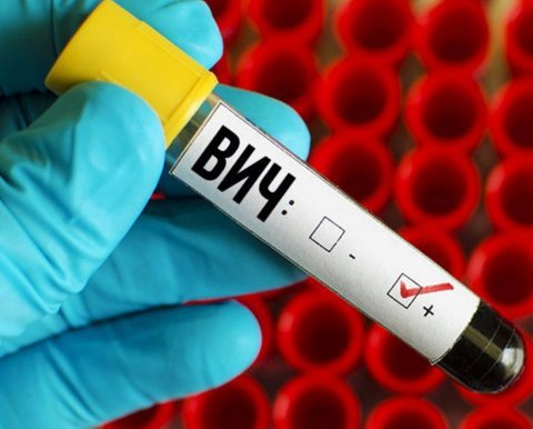 Пробирка с надписью «ВИЧ»