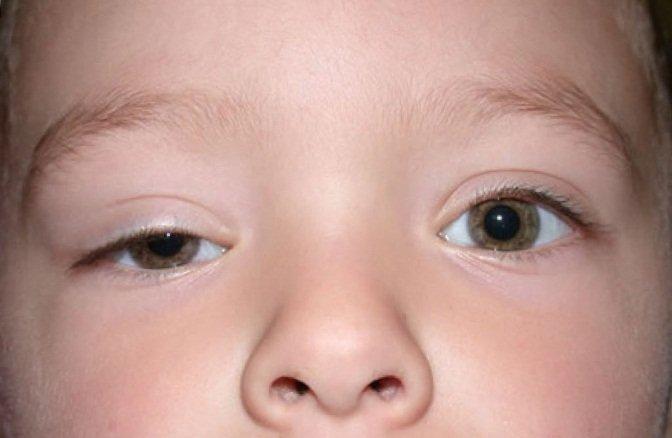 У ребёнка не до конца открыт правый глаз