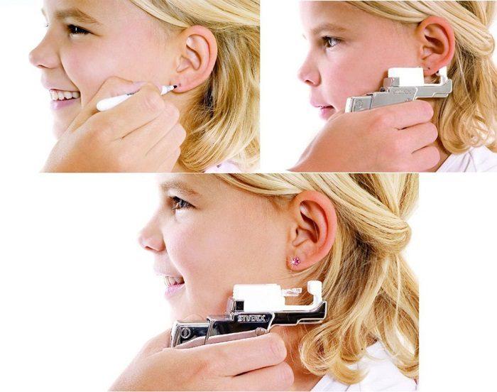 Девочке прокалывают ушки степлером