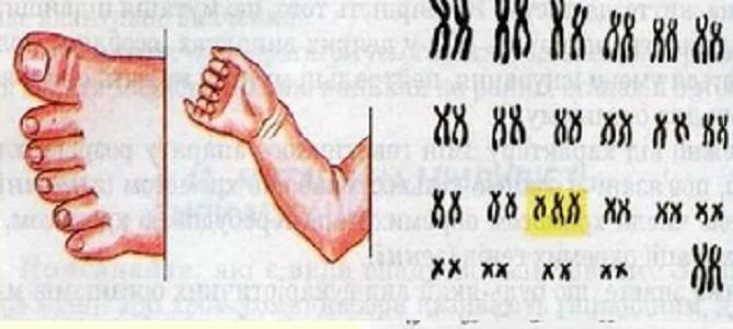 Лишний палец на руке и ноге и наличие третьей хромосомы в 13 паре