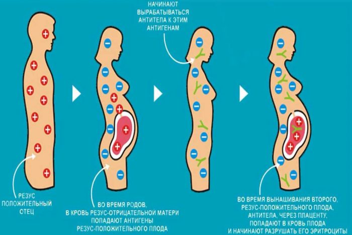Схема резус-конфликта при повторной беременности