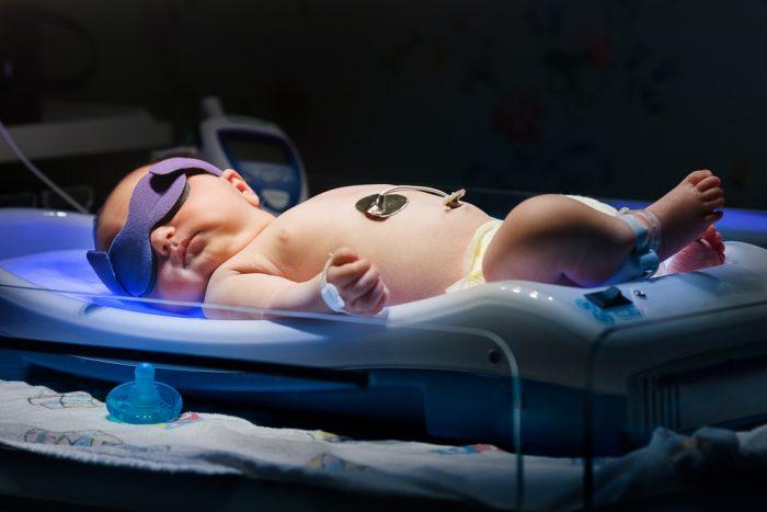 Новорождённый под лампой