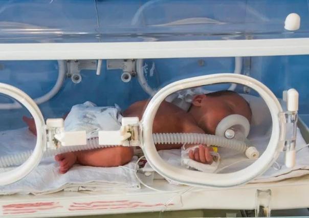 Новорождённый подключен к аппарату искусственной вентиляции лёгких
